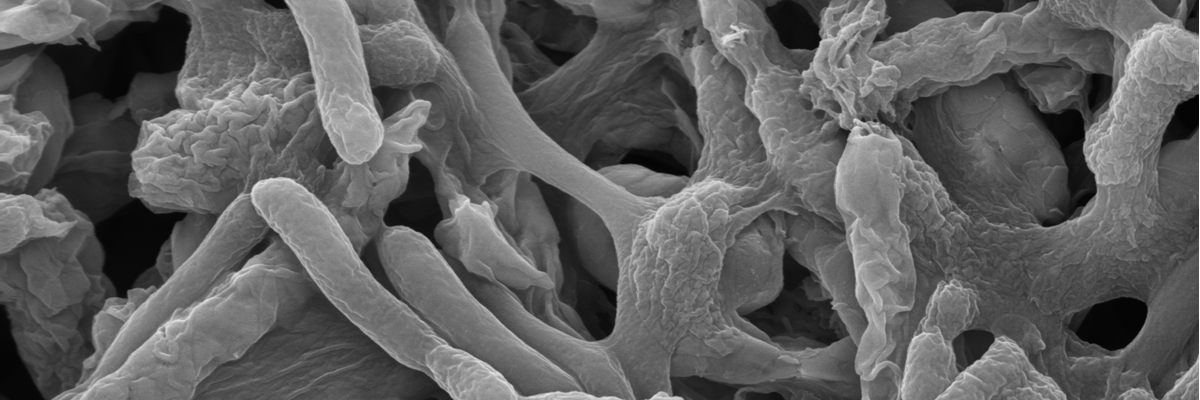 Biofilms on carbon steel close up